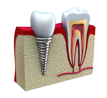 destaque Implantes Dentários