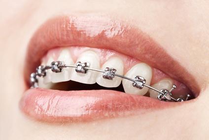 destaque Ortodontias Fixas e Removíveis