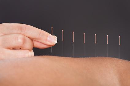 destaque Acupunctura clínica
