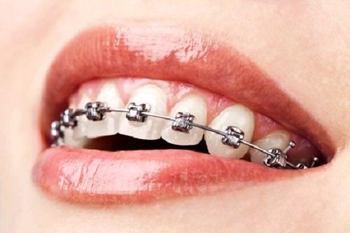 destaque Consultas para Ortodontias Fixas ou Removíveis em Gaia